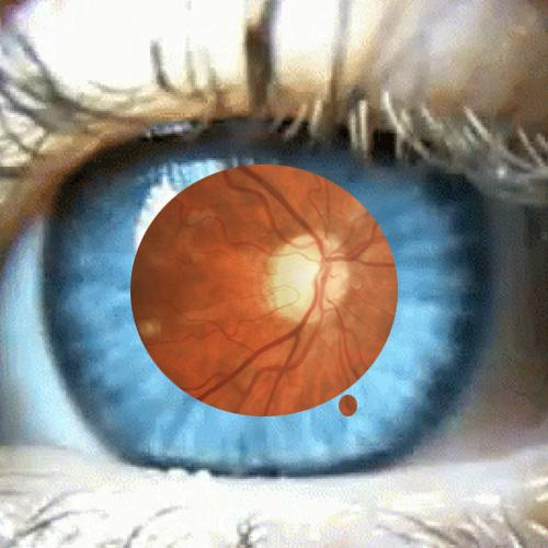 An open blue eye with visible retina. So a central blurred red area, with deeper red line leading to a yellow disc